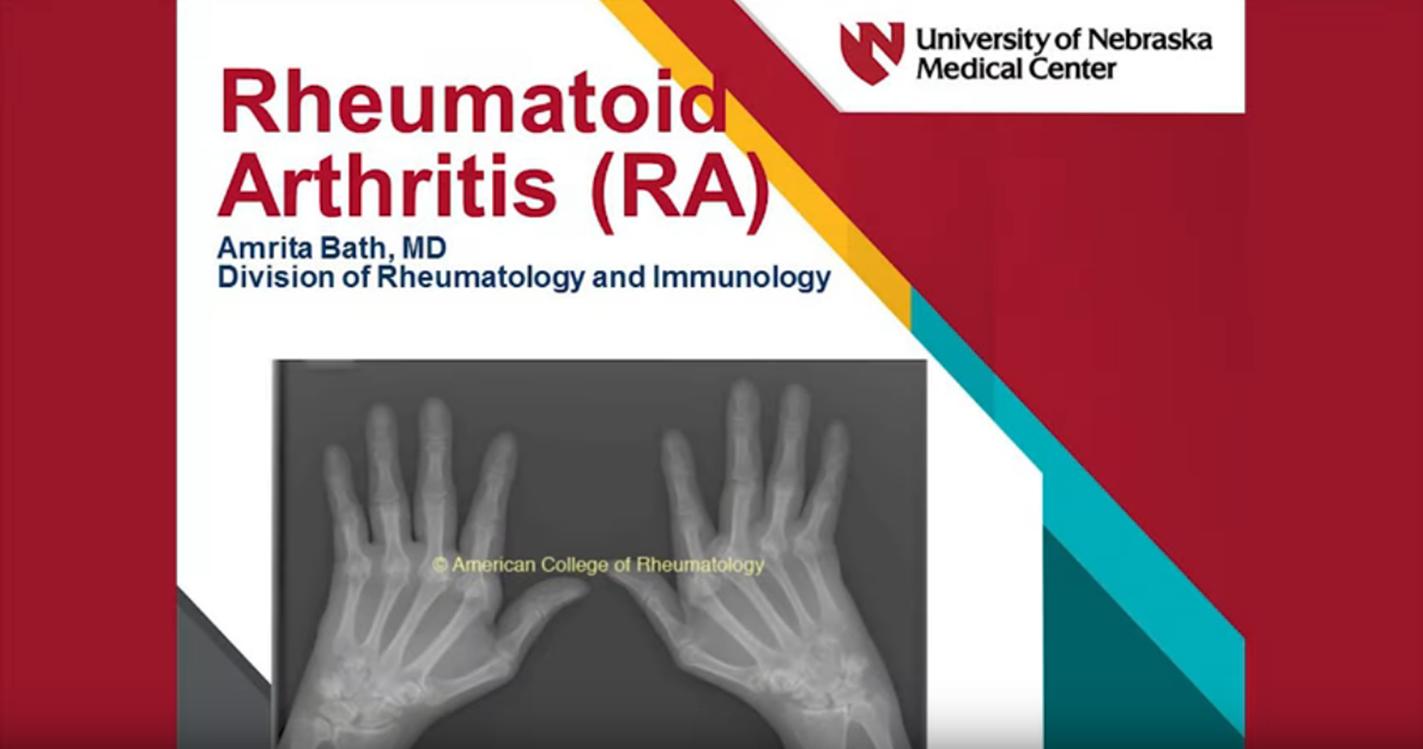Rheumatoid Arthritis Nebraska Medicine Omaha Ne